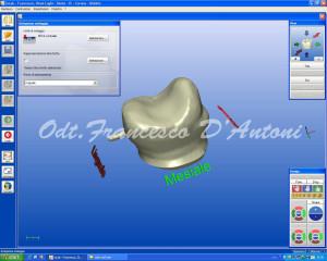 odontotecnico-francesco-d'antoni-tecnologia-cad-cam