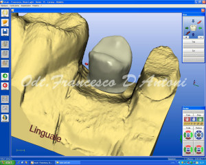 odontotecnico-roma-tecnologia-cad-cam