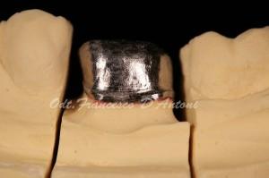 protesi-dentarie-metallo-ceramica-francesco-d'antoni