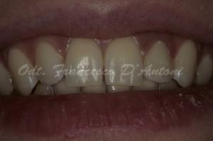protesi-estetica-roma-d'antoni-francesco-2