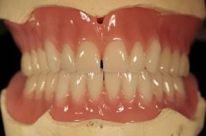 protesi-mobile-totale-odontotecnico-roma