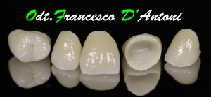 protesi-zirconio-ceramica-odontotecnico-roma