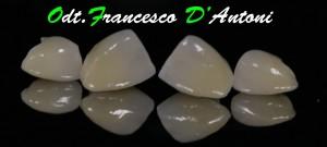 protesi-zirconio-ceramica-odontotecnico-francesco-d'antoni