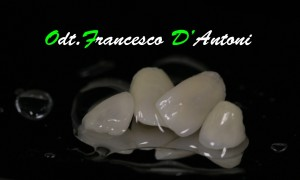 odontotecnico-francesco-d'antoni-poretesi-ceramica-integrale-r