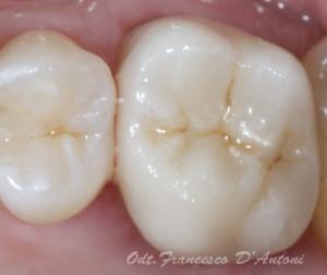 odontotecnico-roma-porotesi-dentarie-ceramica-integrale